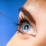 Win Free Laser Eye Surgery With Optical Express - Gratisfaction UK